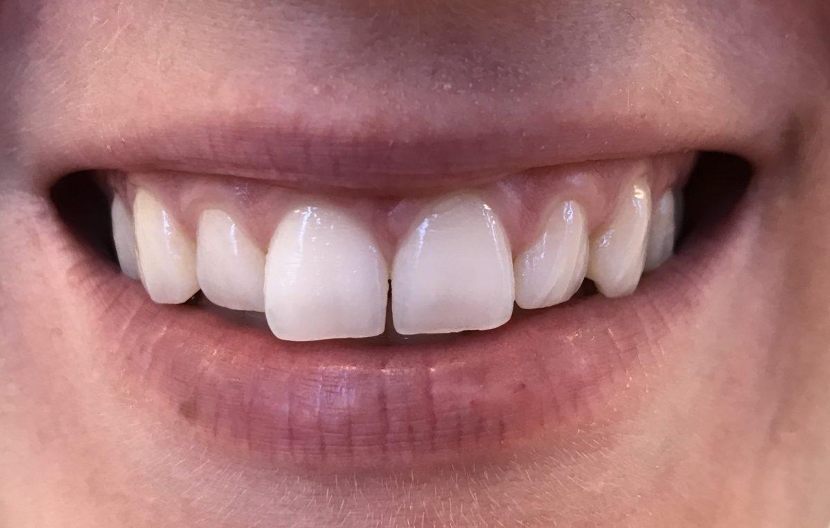 Miten päästä eroon huonoista hampaista?